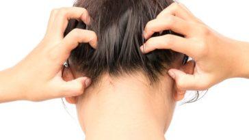 Irritated scalp