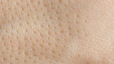 Dilated pores