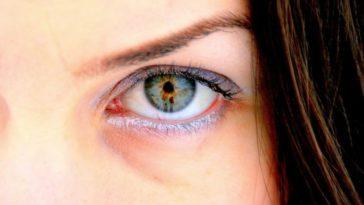 treat eye infections